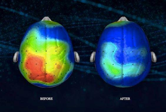 Hjernen før og efter meditation