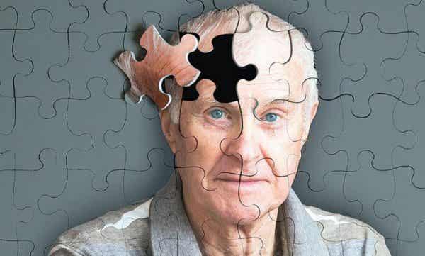 5 advarselstegn på Alzheimers, du bør kende