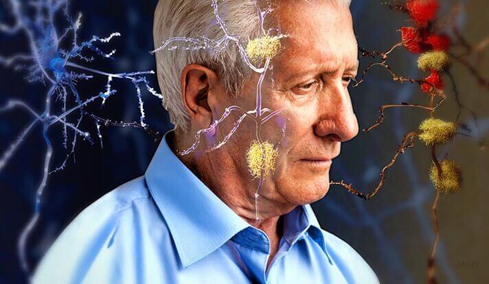 Alzheimers illustreres gennem neuroner