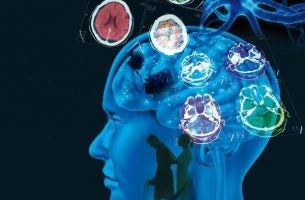Hjerneaktivitet viser multipel sklerose