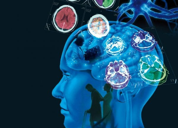 Multipel sklerose: årsager, symptomer og behandling