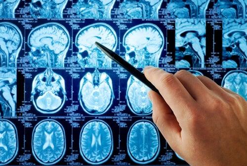 Billeder af hjernen viser frontallap