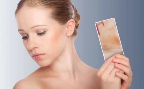 kvinde med billede af atopisk dermatitis