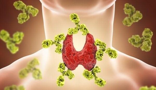 Sygdomme i skjoldbruskkirtlen