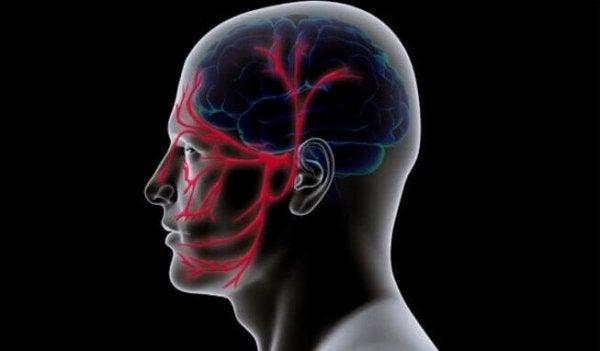 blodkar i hjernen og ansigtet. Trigeminusneuralgi