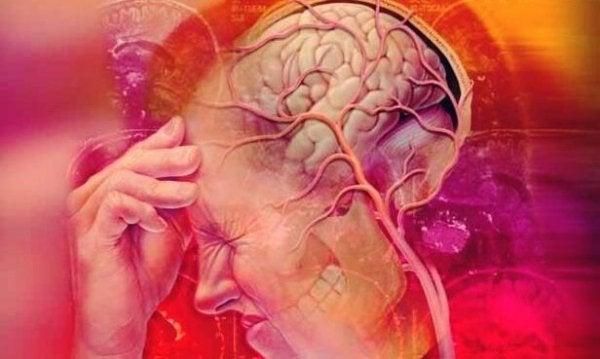 Trigeminusneuralgi og hovedpine.