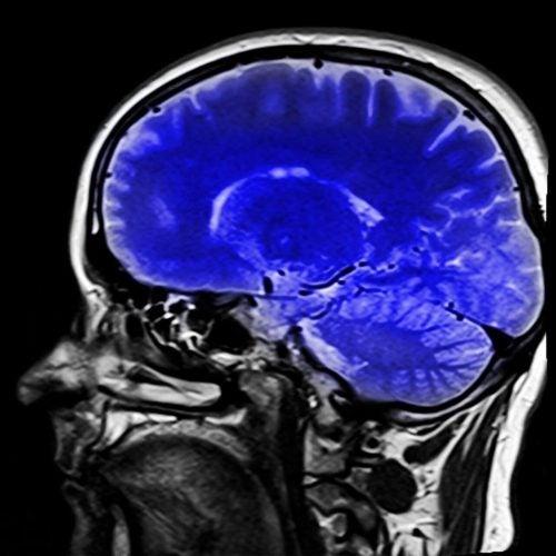 Billede af en hjerne