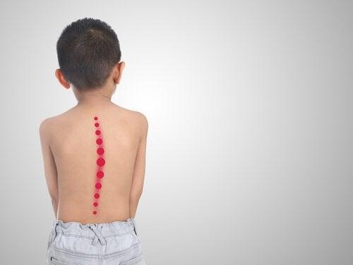 Et barn med skoliose