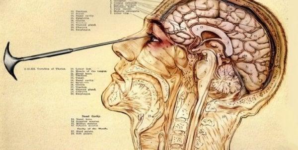Walter Freeman fandt ud af, at man lettere fik adgang til hjernen gannem øjnene