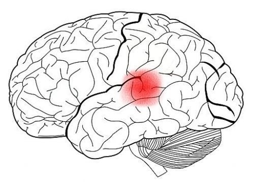 Wernickes område markeret på hjerne