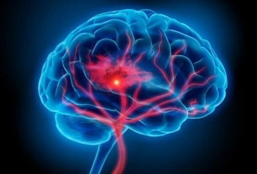 Hjerne i farver, der illustrerer effekten af stress