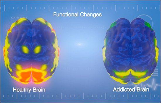 En misbrugers hjerne kontra en sund hjerne