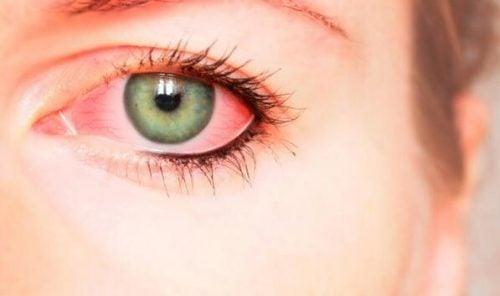 Blodsprængte øjne kan være tegn på psykologisk vold