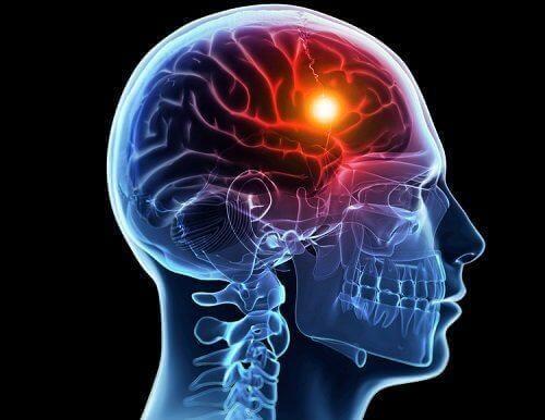 Lys i hjerne illustrerer årsager til et interkranielt aneurisme