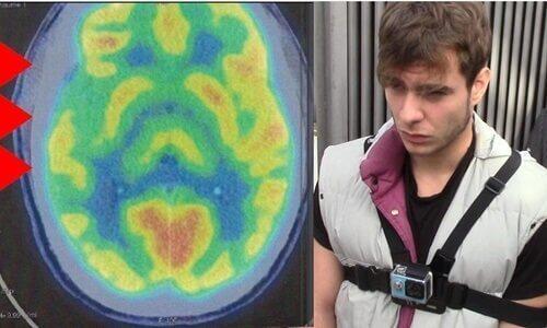 en hjernescanning viser abnormitet i hjernen