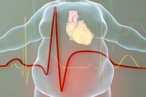 Billede af hjerte med fedt omkring i krop viser et behov for behandling af overvægt