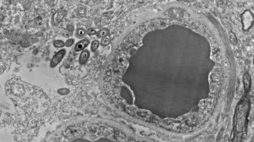 Hjernens mikrobiom: Tarmbakterier i hjernen
