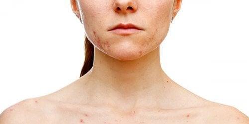 Hudpletter kan være et symptom på polycystisk ovariesyndrom