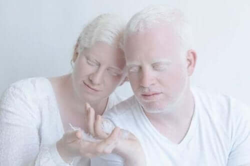 Par, der lever med albinisme