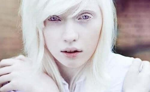 At leve med albinisme: Mere end fysisk fremtoning