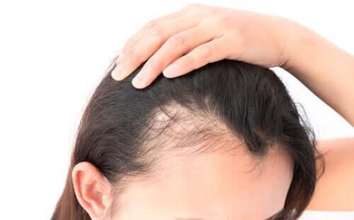 Alopecia hos kvinder