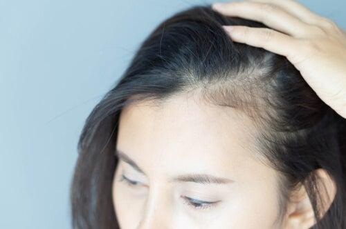 De psykologiske konsekvenser af alopecia hos kvinder