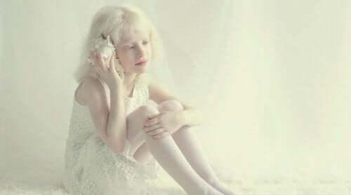 Lille pige, der skal leve med albinisme