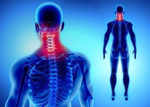 Menneskekrop med nakkesmerter