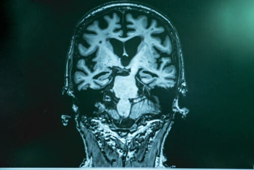 Billede af hjernescanning