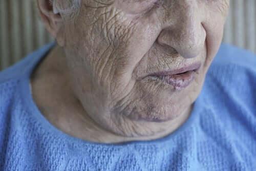 Ansigtslammelse: Årsager og behandlinger