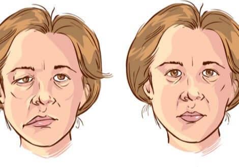 Ansigtslammelse kan have voldsom effekt på en persons udtryk