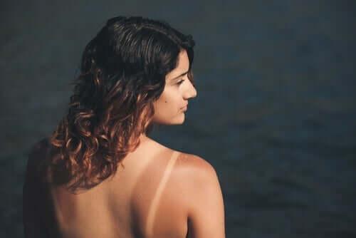 Kvinde med mærker fra solbadning
