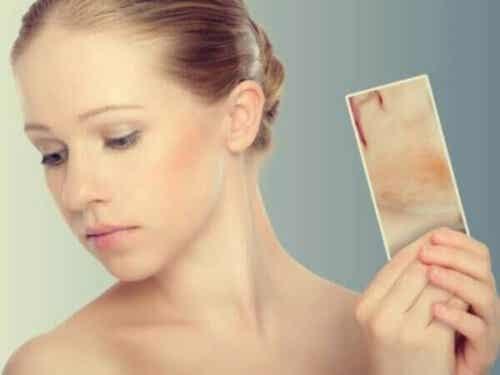 Udslæt af stress: Når huden reagerer på følelser