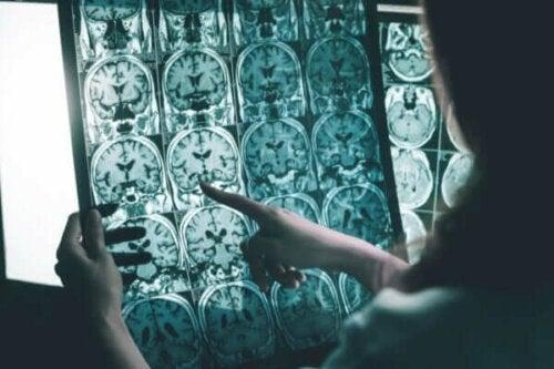 Stimulation af hjernebølger til personer med Alzheimers